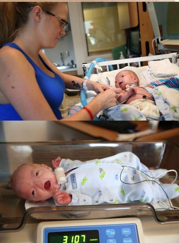 Conoce la Extraordinaria Historia de Timothy Eli, el bebé que nació sin nariz